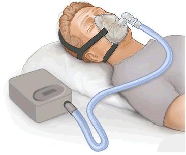 Middelen tegen snurken - CPAP-machine