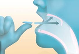 Snoreeze keelstrips