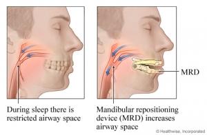 MRA als alternatief voor Snoreeze keelstrips